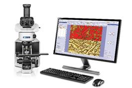 顕微鏡用画像解析ソフトウェア「OLYMPUS Stream(オリンパス ストリーム)」にディープラーニングを活用した画像解析技術「TruAI(トゥルーエーアイ)」を搭載